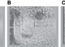 Proteza vizuala / NewScientist