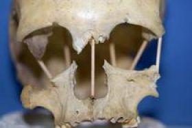image-2021-06-12-24856154-46-craniul-din-pestera-muierii-foto-mattias-jakobsson.jpg