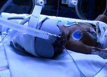 DGS sustine ca in acest caz nu este vorba de culpa medicala/flickr.