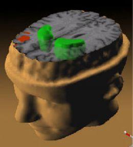 Testele de memorie arata reducerea activitatii metabolice in lobii frontali (rosu) si cresterea anormala a activitatii dopaminice in corpii striati (verde).